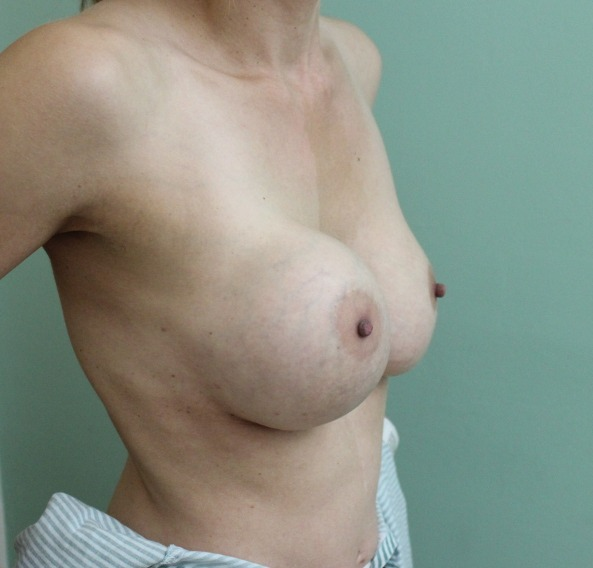 capsular contracture breast implant surgery before picture right oblique view