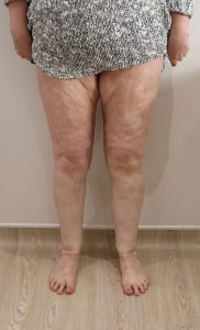lipoedema-liposuction leg after ap