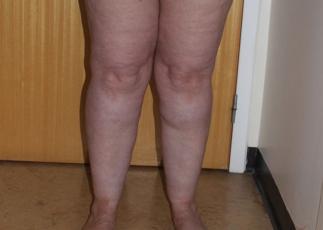 lipoedema-liposuction leg before ap