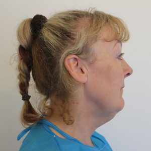 necklift before picture right lateral