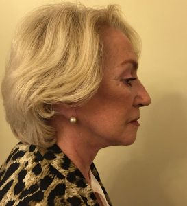 facelift after right lateral