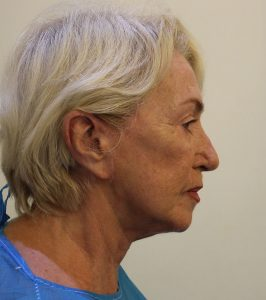 facelift before right lateral