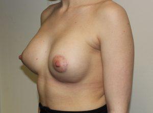 tuberous breast correction after picture left oblique