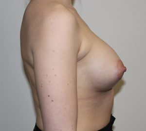 tuberous breast correction after picture right lateral