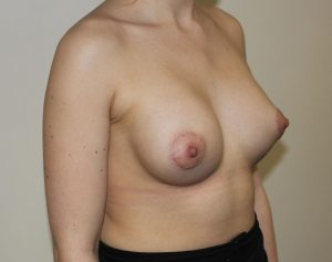 tuberous breast correction after picture right oblique
