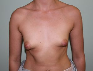 tuberous breast correction before picture ap