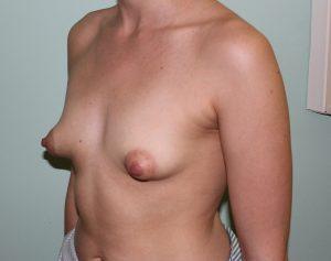 tuberous breast correction before picture left oblique