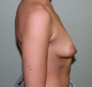 tuberous breast correction before picture right lateral