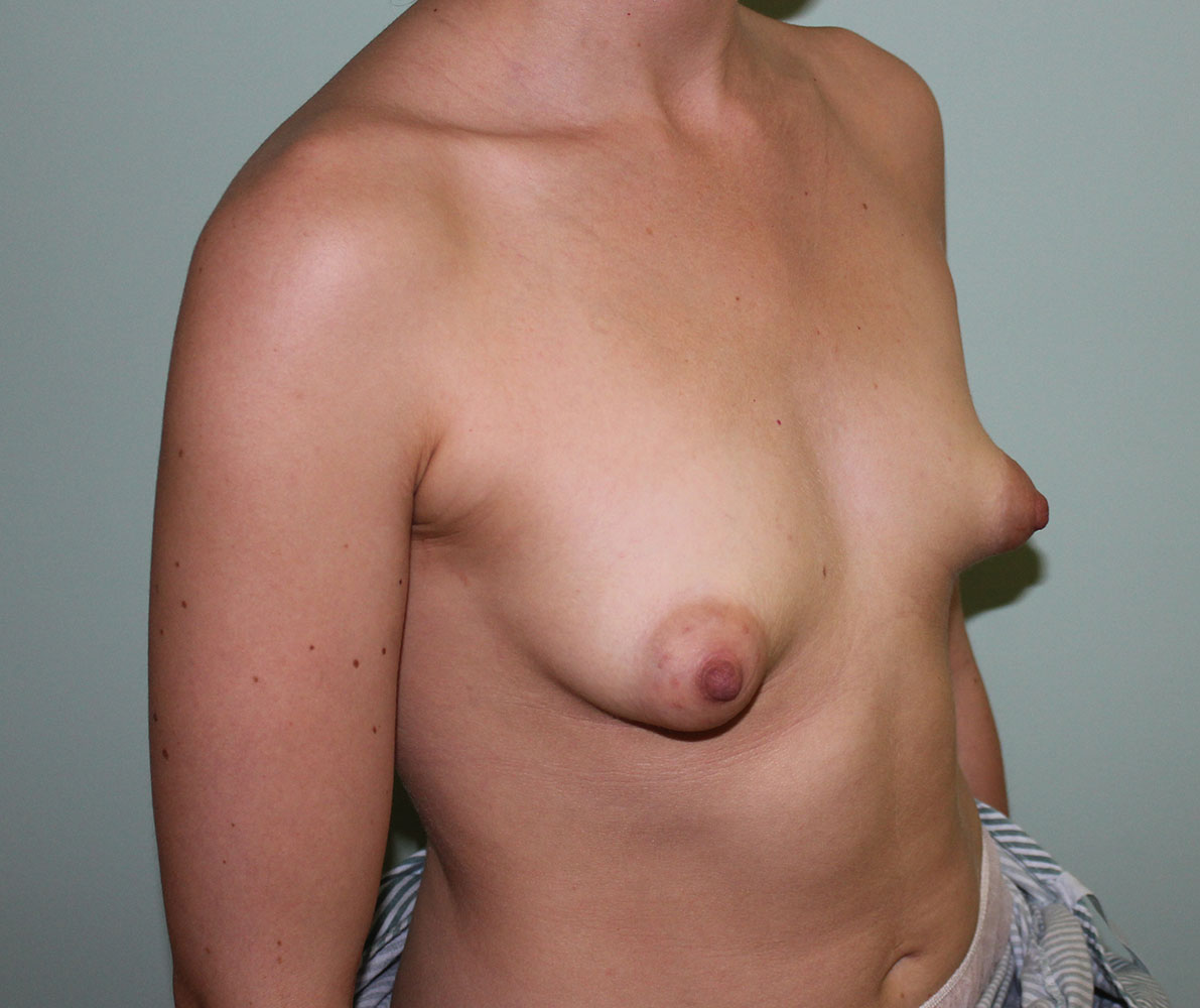 tuberous breast correction before picture right oblique