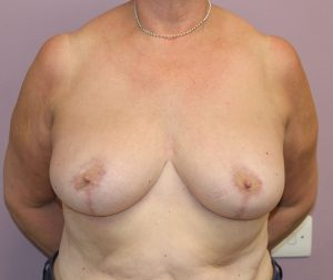 breast reduction after ap