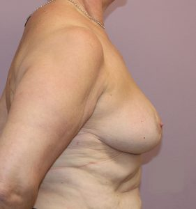 breast reduction after right lateral