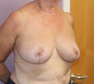 breast reduction after right oblique