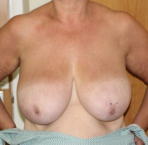 breast reduction before ap