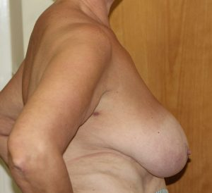 breast reduction before right lateral