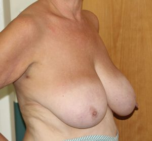breast reduction before right oblique
