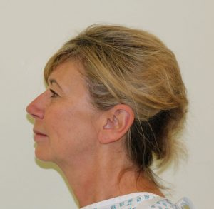 facelift-necklift eyelid surgery before left lateral