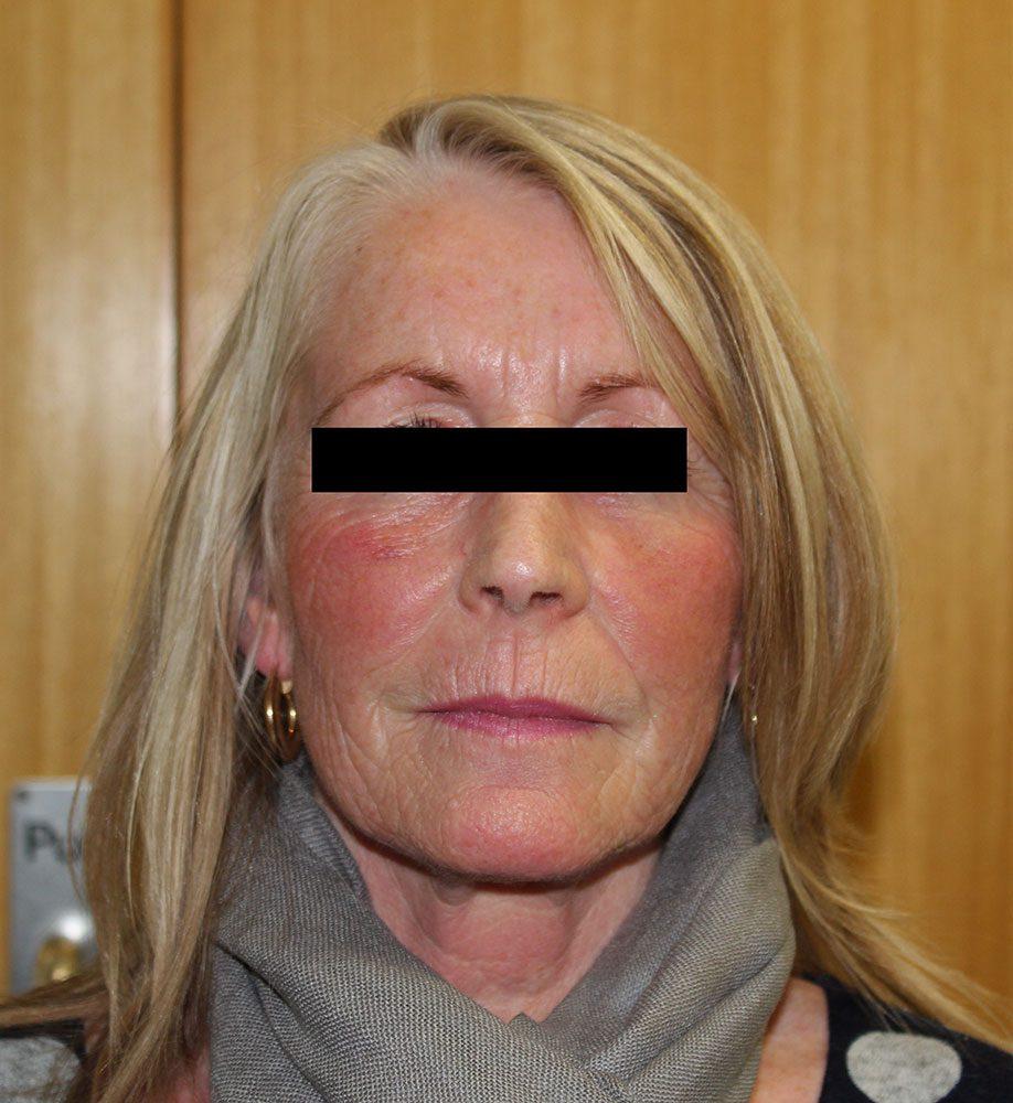 facial-fat-grafting after ap