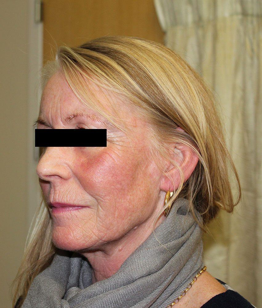 facial-fat-grafting after left oblique