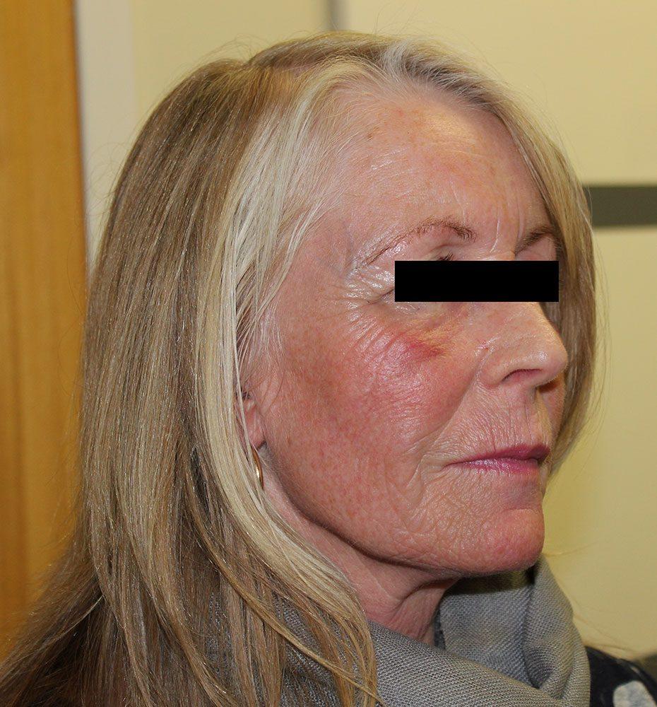 facial-fat-grafting after right oblique