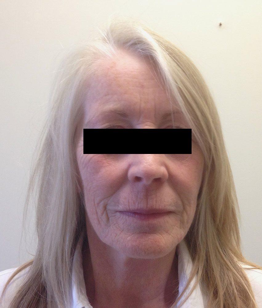 facial-fat-grafting before ap