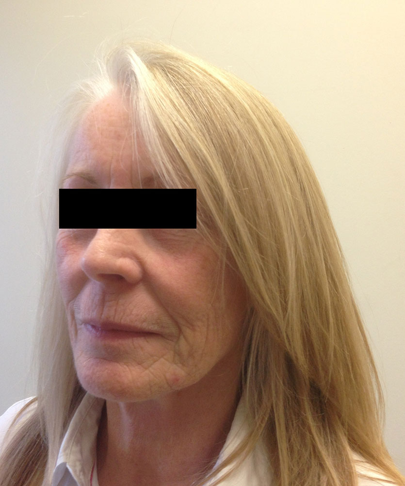 facial-fat-grafting before left oblique