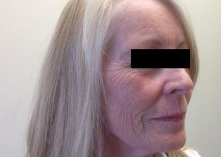 facial-fat-grafting before right oblique