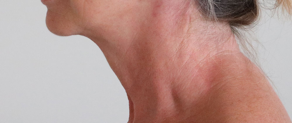 necklift after picture left lateral