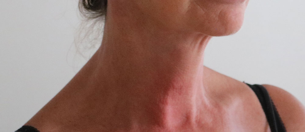 necklift after picture right oblique