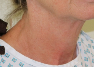 necklift before picture right oblique