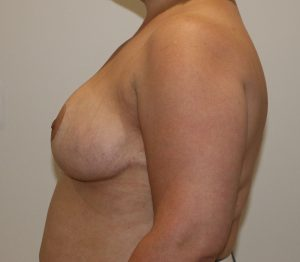 breast reduction after left lateral