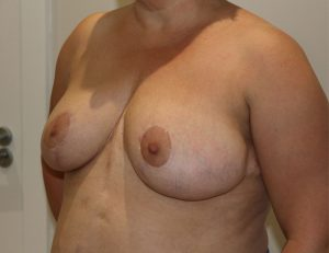breast reduction after left oblique
