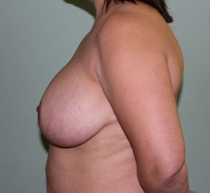 breast reduction before left lateral