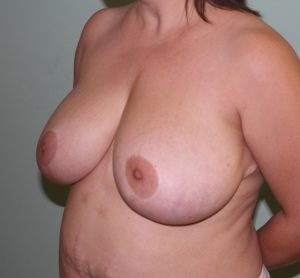 breast reduction before left oblique