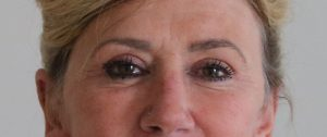upper eyelid surgery after picture ap