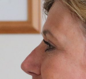 upper eyelid surgery after picture left lateral