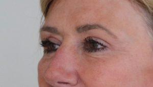 upper eyelid surgery after picture left oblique