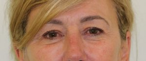 upper eyelid surgery before picture ap