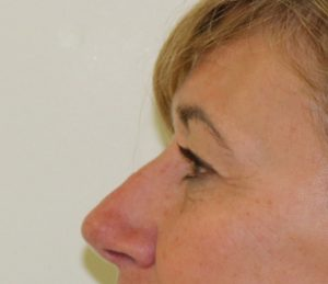upper eyelid surgery before picture left lateral