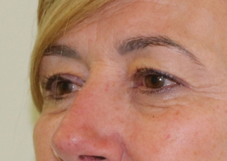 upper eyelid surgery before picture left oblique