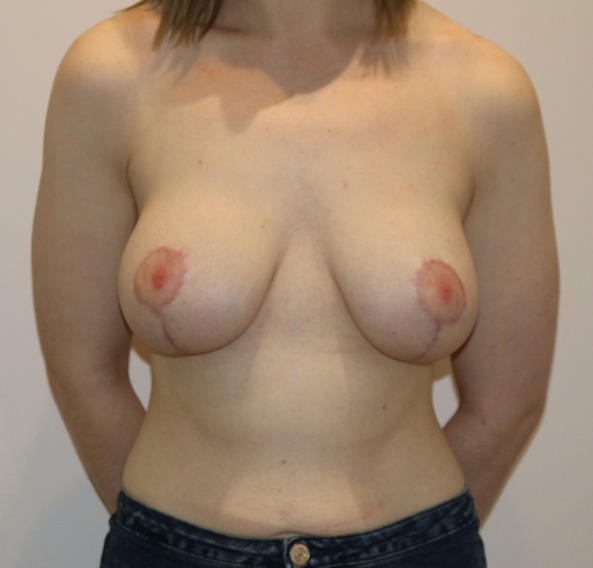 breast augmentation mastopexy after picture ap