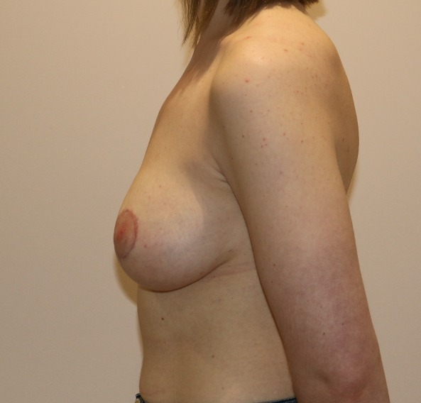 breast augmentation mastopexy after picture left lateral