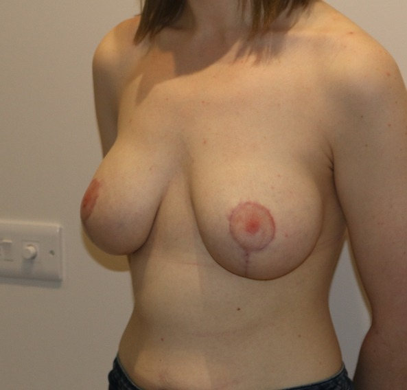 breast augmentation mastopexy after picture left oblique
