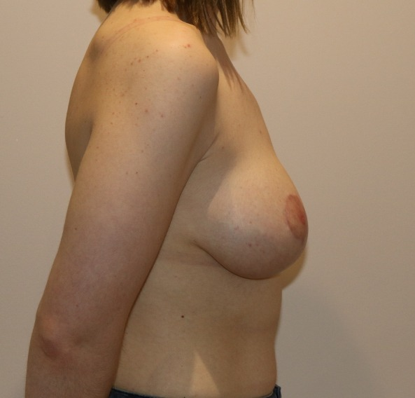 breast augmentation mastopexy after picture right lateral