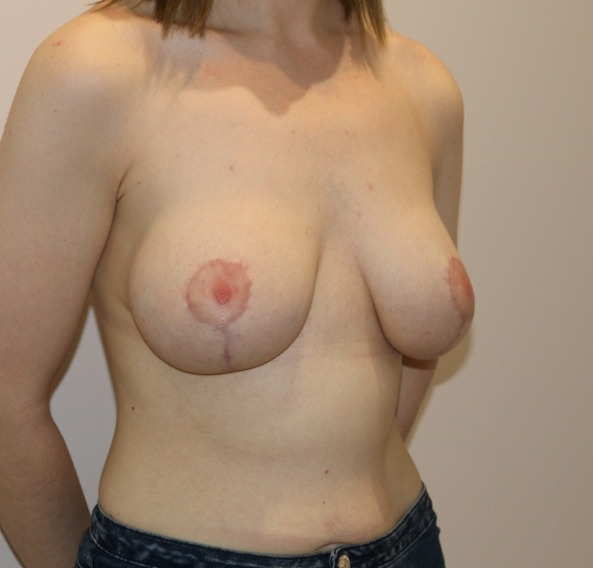 breast augmentation mastopexy after picture right oblique