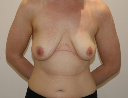 Augmentation Mastopexy