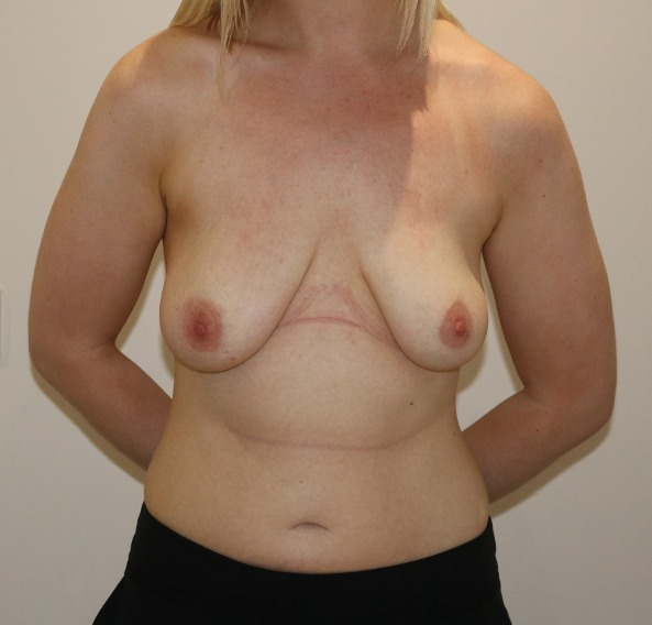 breast augmentation mastopexy before picture ap