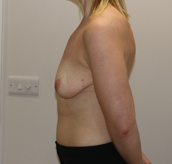 breast augmentation mastopexy before picture left lateral