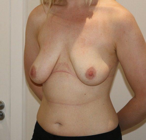 breast augmentation mastopexy before picture left oblique
