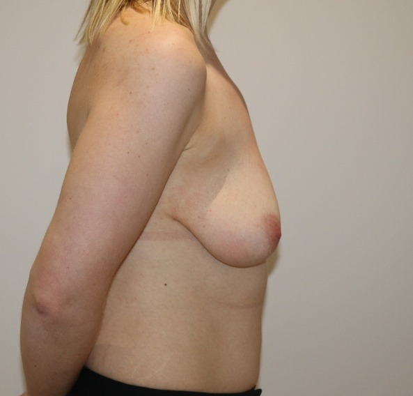 breast augmentation mastopexy before picture right lateral