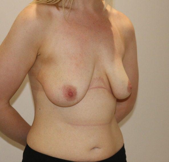 breast augmentation mastopexy before picture right oblique